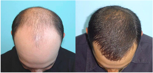 Everything You Should Know Before Shelling Out For A Hair Transplant Surgery
