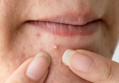Whiteheads Pimples