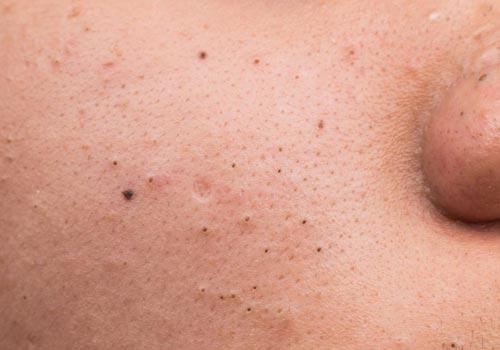 blackheads pimples