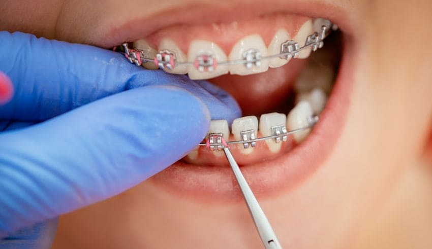 Brace Yourself: 4 Essential Orthodontic Benefits Everyone Should Know