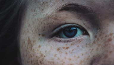 Sun spots On Skin