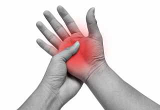 how do you know if you have arthritis